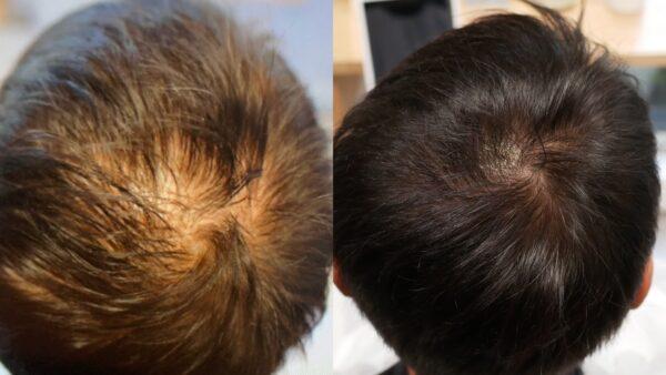 抜け毛・薄毛に3回で効果!ヒト幹細胞培養液スパで発毛・増毛