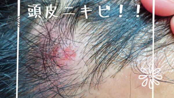 【結論から解説】頭皮ニキビの原因とは!?潰しちゃダメ!頭皮ニキビの改善と予防方法